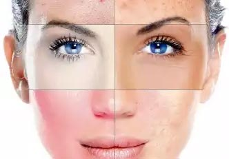 Como usar creme para sinais de pele