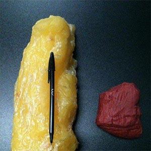 Como diminuir a gordura corporal