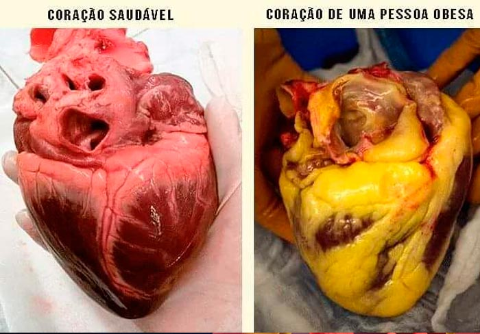 coração-obeso-e-coração-saudavel