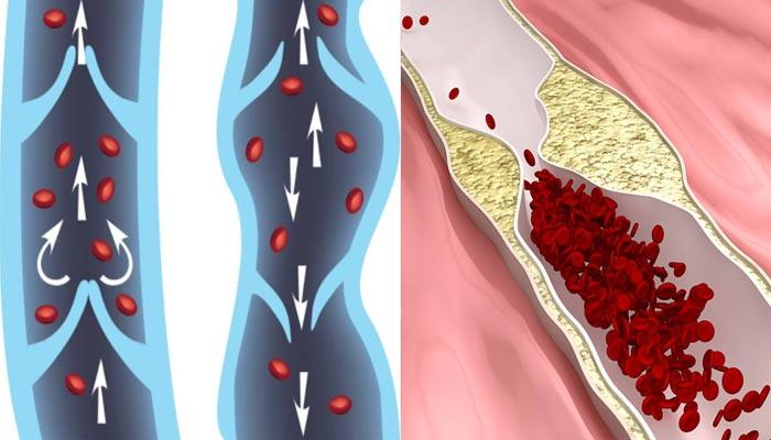 antes-e-depois-do-tratamento-para-circulação-do-sangue-nas-pernas