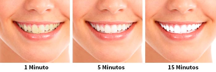 Clean Smile Tratamento De Clareamento Dentario