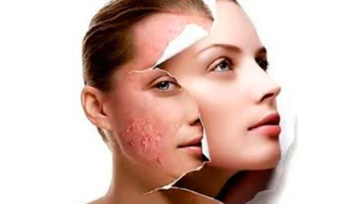 acnes-e-espinhas-tratamento