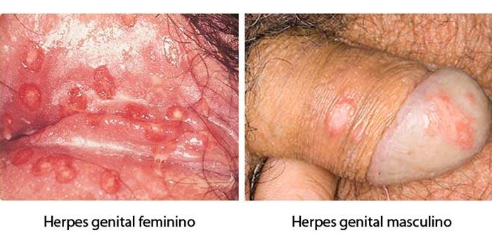 Herpes-genital-feminina-e-masculina
