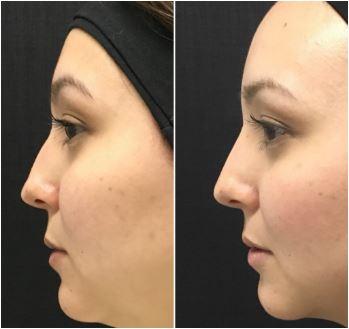 preenchimento nariz com ácido hialurônico