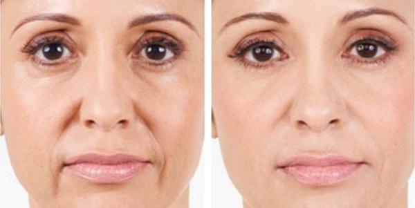 Ácido hialurônico antes e depois