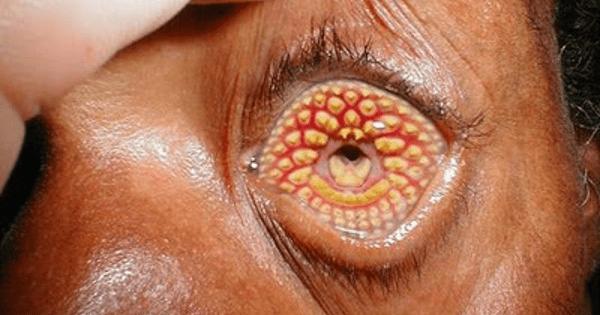pessoa com doença nos olhos