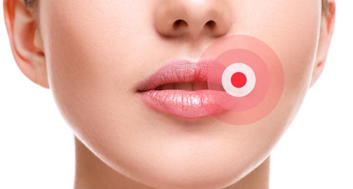 Feridas na boca, causas e tratamentos